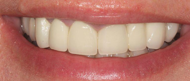 dental smile makeover in hertfordshire