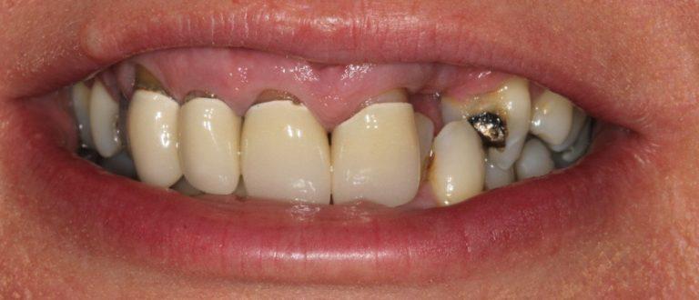 wgc dentist smile makeover