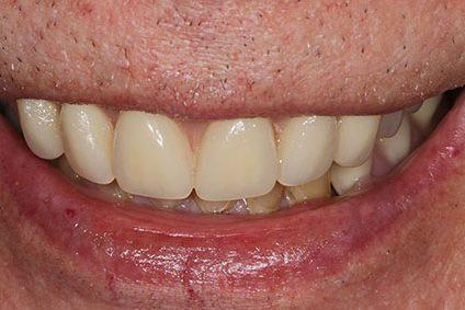 John after smile makeover at Dental Beauty WGC in hertfordshire
