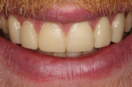 steve-after-dental-bonding-2