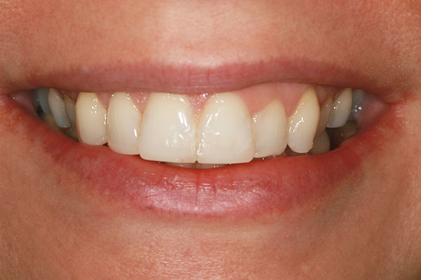 smile makeover in swanley